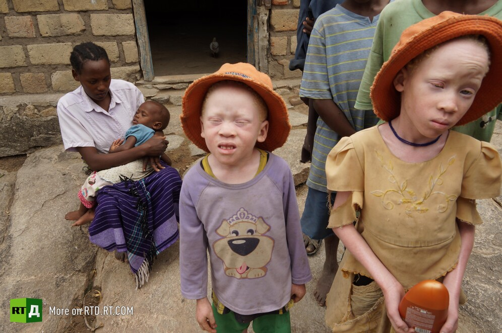 Albino people in Tanzania persecuted for the colour of their skin