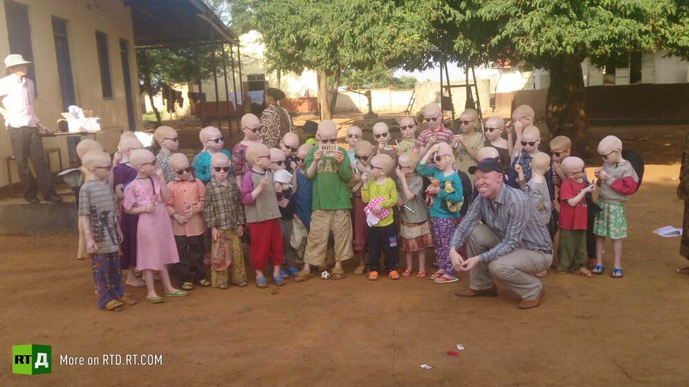 Albinos in Tanzania live in special camps