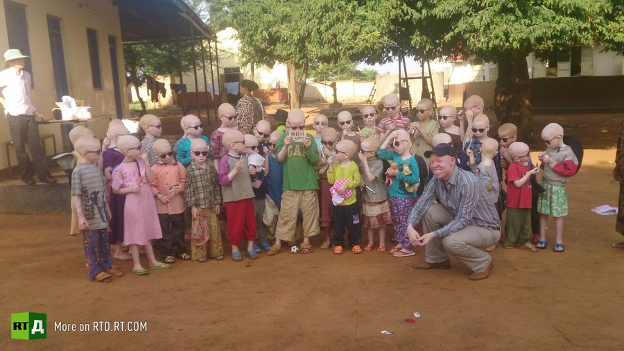 What is albinism?